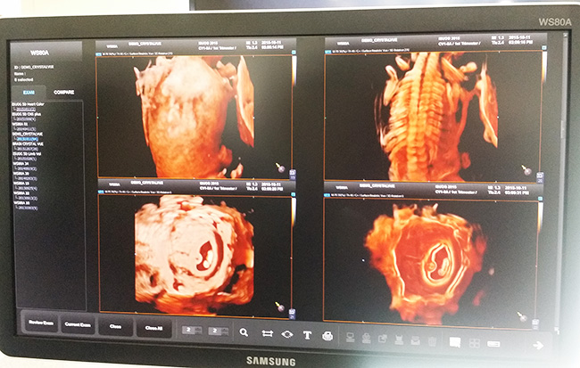 Samsung develops ultrasound technology to monitor embryonic skeletal muscles