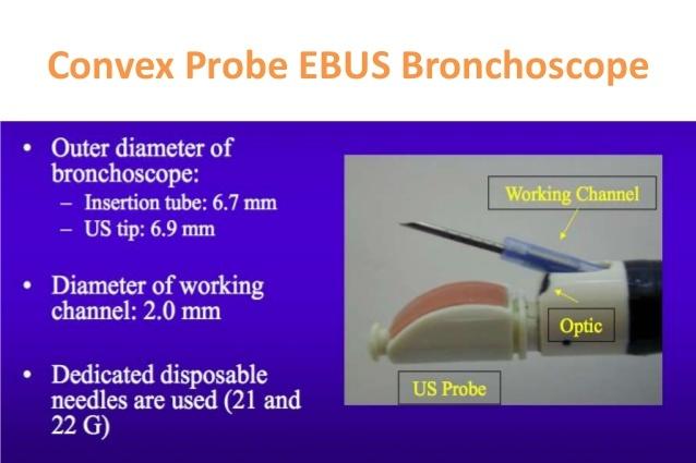 A new needle on the block: EchoTip ProCore endobronchial ultrasound needle