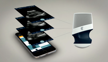 Wireless, Handheld Ultrasound For iOS and Android Debuts